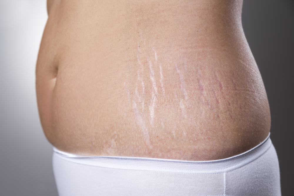 How To Get Rid of Stretch Marks (Butt, Thigh & Hips)
