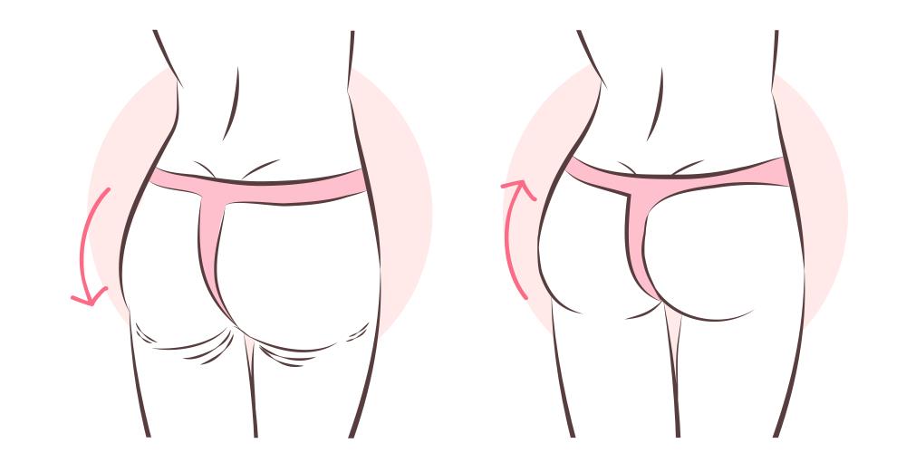 """""""H"""" Shape Butt"""